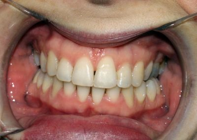 dental-braces-essex-Suzie-1