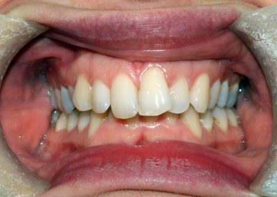 dental-braces-essex-Suzie-4