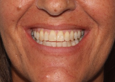 Crowded top and bottom teeth after clear fixed braces Essex