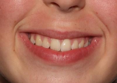 Bayley-after-braces