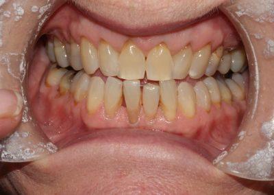 Composite-Veneer-Case-Lower-Tooth-1
