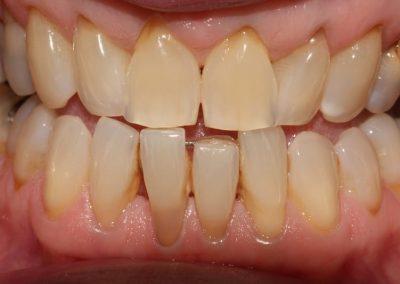 Composite-Veneer-Case-Lower-Tooth-2