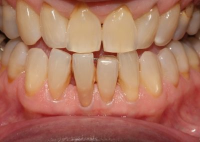 Veneer Case Lower Tooth