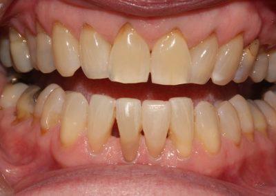 Composite-Veneer-Case-Lower-Tooth-4
