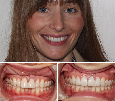 Dental Veneers Essex Thurrock Grays Before & After