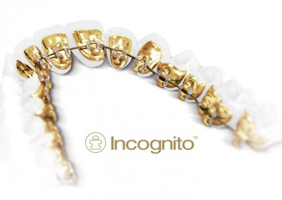 Incognito-essex-braces-small