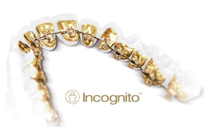 Cost of Lingual braces