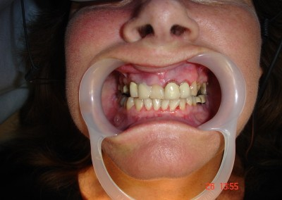 Previous dental Work