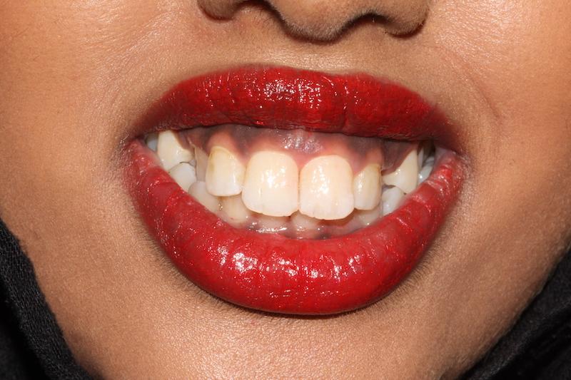Before braces