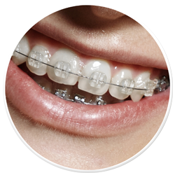 Fixed Braces South Ockendon Essex