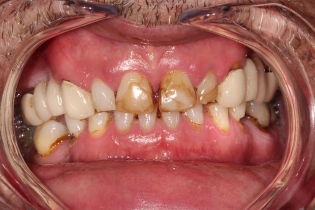 Before Dental Veneers Essex