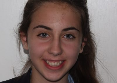 essex-dentist-fastbraces-Millie-Child-Braces-5