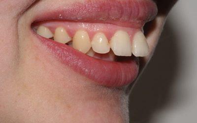 Hayley braces