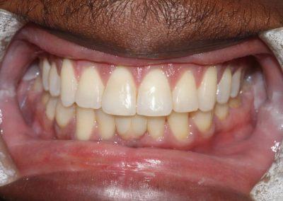 implant-nigel-1