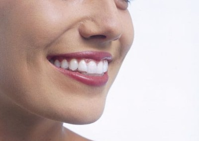 invisalign brace dentist essex