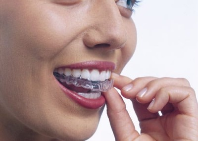 invisalign braces essex