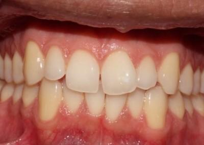 Essex Before braces