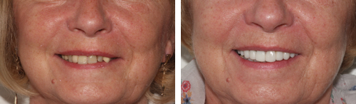 Smile Makeover Essex | For A Perfect Smile Essex South Ockendon