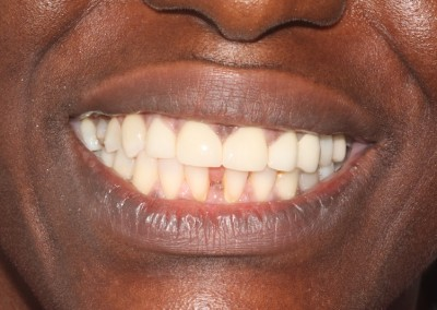 smile-makeover-veeners-Whitening-after-case-3-1