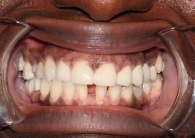 smile-makeover-veeners-Whitening-after-case-3