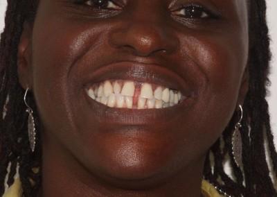 smile-makeover-veeners-Whitening-before-case-3-2