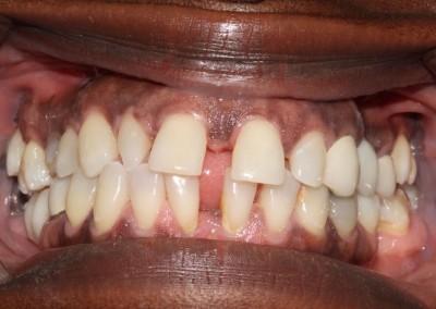 smile-makeover-veeners-Whitening-before-case-3