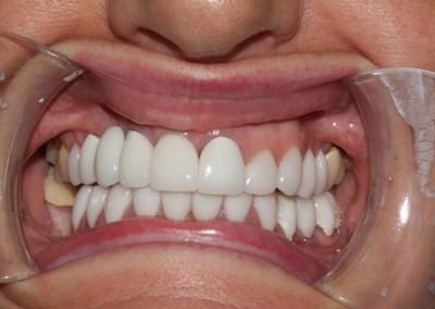 smile-makeover-veeners-crowns-after-case-2