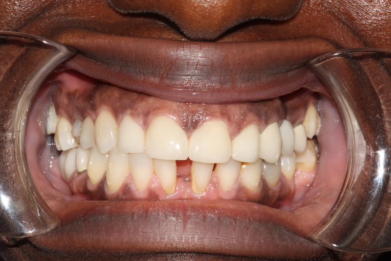smile-makeover-veeners-crowns-after-case-3