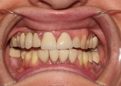 smile-makeover-veeners-crowns-before-case-2