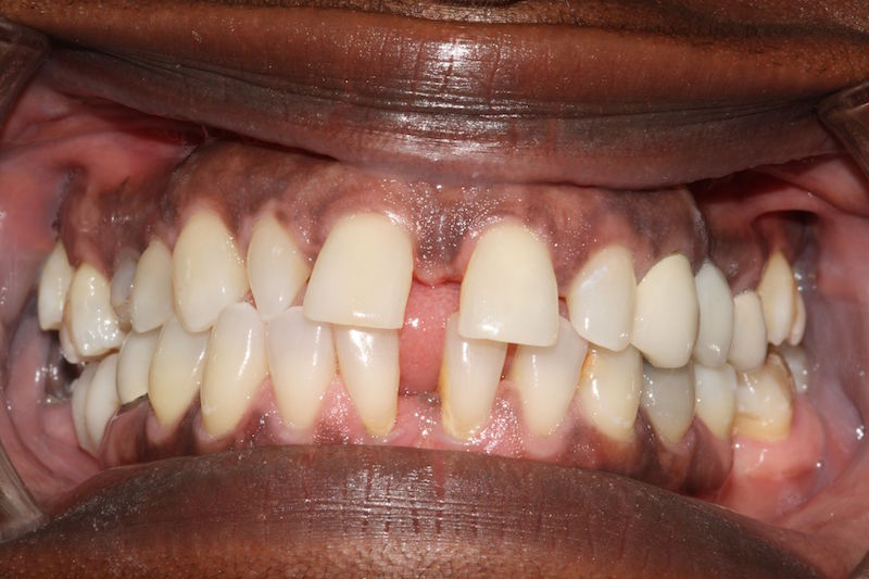 smile-makeover-veeners-crowns-before-case-3