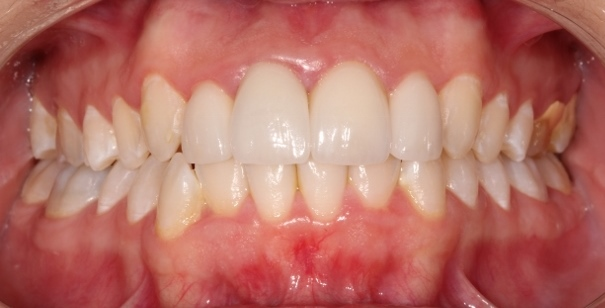 After Dental Veneers Essex